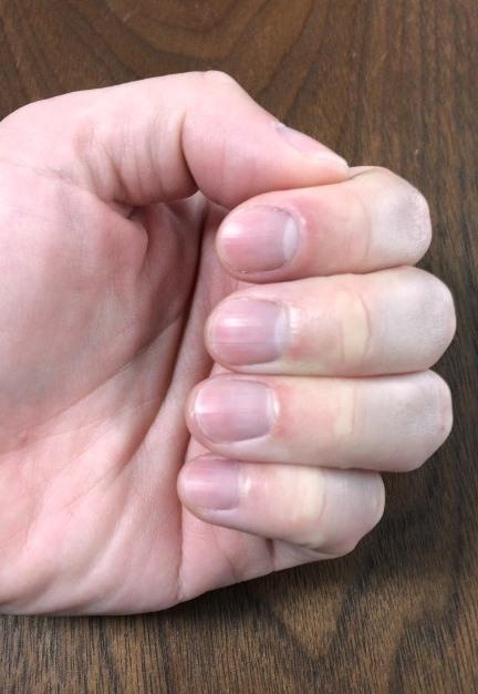左手指の爪の長さ