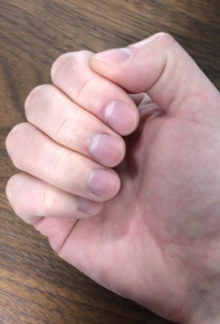 右手指の爪の長さ